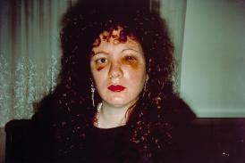 """Nan one month after being battered,"" 1984, Nan Goldin"